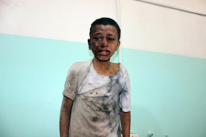 yemen kid attack